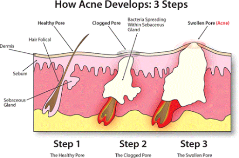 1434144879-acne-developing-process-diagram.gif