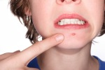 everything-you-need-to-know-about-acne