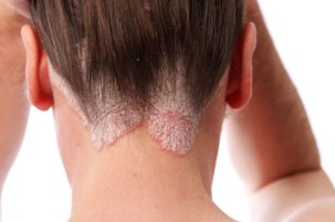 psoriasis-neck
